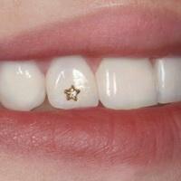Что такое скайсы на зубы
