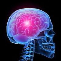 Как распознать инсульт